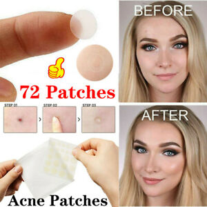 72pcs Skin Tag Acne Patch New Hydrocolloid Acne And Skin Tag