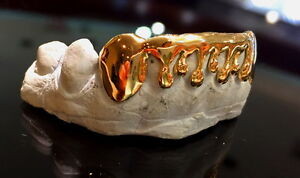 10K SOLID REAL YELLOW GOLD DRIP STYLE GRILL DRIPPING GRILLZ