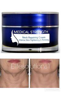 new wrinkle cream