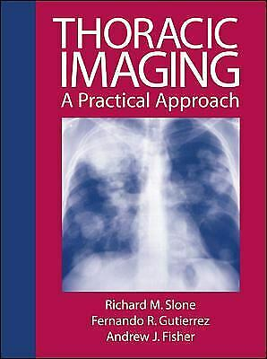 Review of Thoraic Imaging and Chest Disease : A Practical Approach