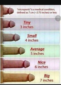Penis Small A Is Inches 7