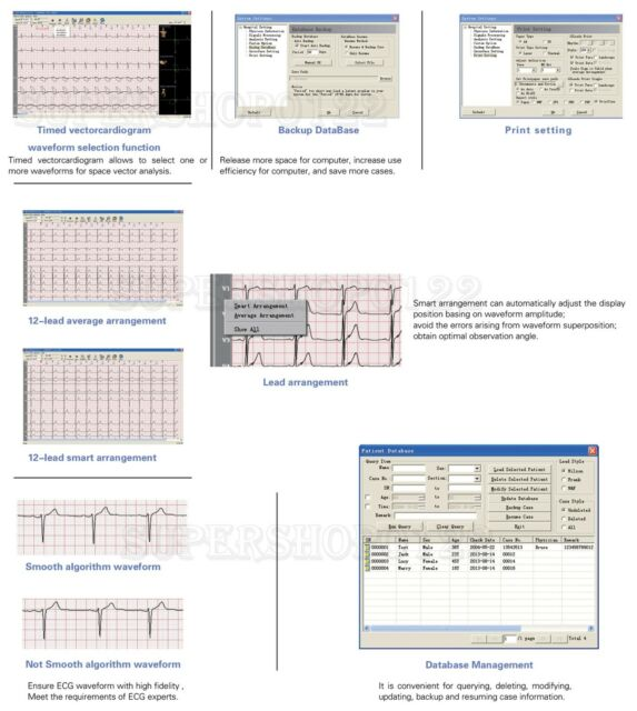Contec8000g ECG Workstation System Portable 12-lead Resting PC Base EKG  Machine