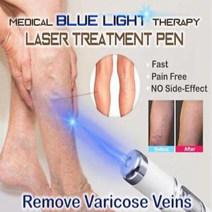 clay blue varicose tratament