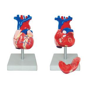 66fit-Lebensgrosses-anatomisches-Modell-des-Herzens-med-Ausbildungshilfe