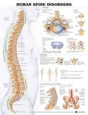 Human Spine Disorders, Anatomical Chart/Charts/Model
