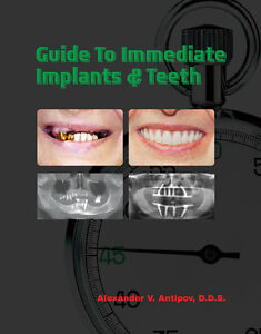 Guide-To-Immediate-Dental-Implants-Teeth-Professional-Health-Education-Paperback