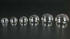 Feuerschroepfglas-15-80mm-Schroepfglas-Schroepfglaeser-Feuerschroepfen-LauschaerGlas
