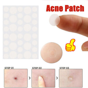 36Pcs-Invisible-Acne-Pimple-Patches-Face-Spot-Scar-Care-Skin-Treatment-Stickers