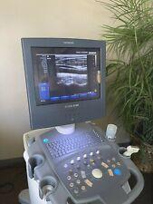 Siemens Acuson X150 Ultrasound With Vf 13 5 Transducer Mitsubishi P93 Printer