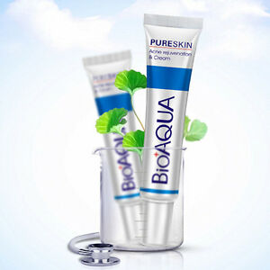 Women-Acne-Removal-Cream-Shrink-Pores-Oil-Control-Face-Beauty-Healthy-Care-Suppl