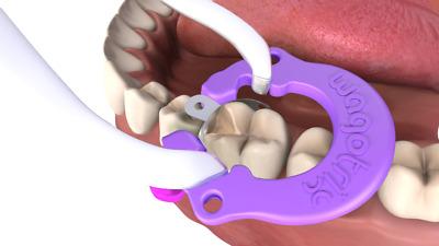 Sectional Matrix System Dental Rings Wagotrix 100