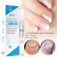 3ml-Anti-Fungal-Treatment-Nail-Pen-Onychomycosis-Paronychia-Infection-Herbal-Toe miniature 6