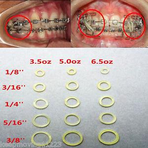 5 100 Pcs 5 Sizes Dental Orthodontics Elastic Rubber Bands Braces