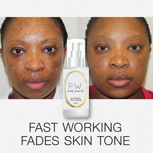 Pure white whitening face serum skin whitener stops pigmentation dark