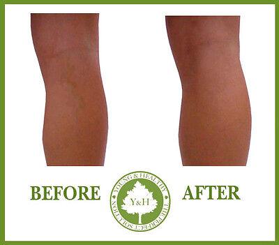 *** BEST VARICOSE VEINS LEGS VESSELS & SPIDER VEINS REMOVER CREAM TREATMENT !!!