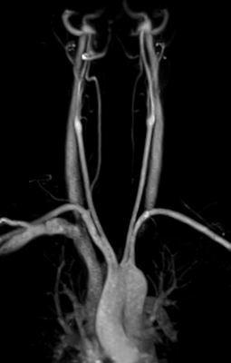 Framed Print - MRI Scan Human Vascular System (Medical Picture Pathology Doctor)
