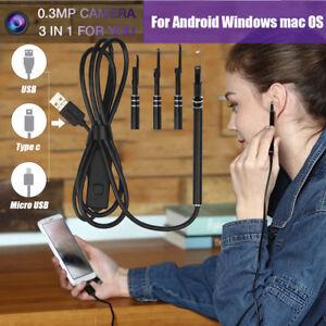 Digital-Led-Otoscope-Ear-Camera-Scope-Earwax-Removal-Kit-Ear-Wax-Cleaning-Tool
