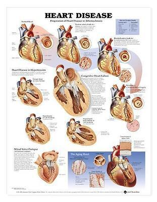 Heart Disease Chart/Charts/Models Anatomical   eBay