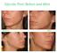 Glycolic-Acid-35-Plus-DMAE-MSM-Serum-Cream-Anti-Aging-Acne-Scars-Wrinkles thumbnail 5
