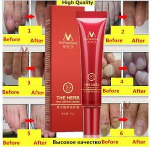 Mode-Unisexe-Creme-de-traitement-des-ongles-de-doigt-Fungus-Remove-Care