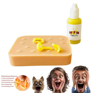 Stop-Picking-Your-Face-Pop-it-Pal-Peach-Pimple-Popping-Popper-Remover-Funny-Toys