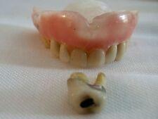 DENTURES/False teeth - Upper MENS? Plus One Moller Crown Medical School Display