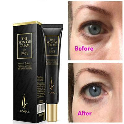 Same Effects Of Rapid Eye Anti Aging Wrinkles Eye Serum Effective