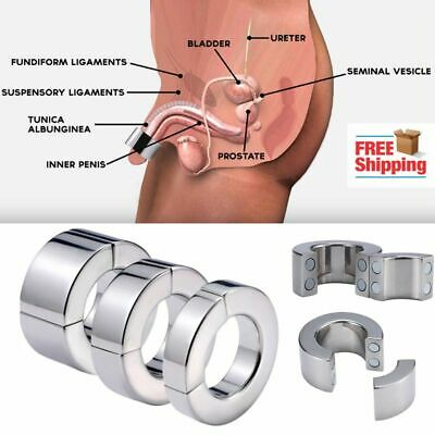 Magnet prostatitis a hatása a betegség, és a használata a kezelés mágnesterápia