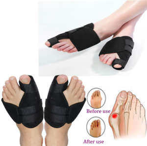 Bunion-Splints-Foot-Big-Toe-Pain-Relief-Hallux-Valgus-Splint-Brace-PAIR