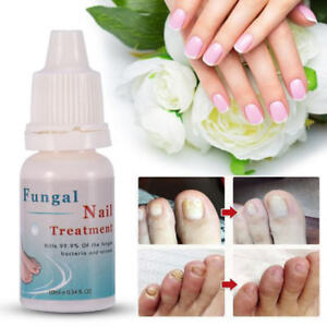 HOT Nail Paronychia Onychomycosis Treatment Herbal Cream