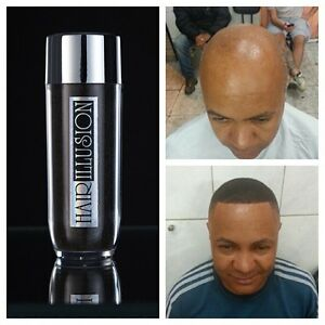 HAIR-ILLUSION-Hair-Fibers-Use-With-Minoxidil-Rogaine-Bald-Spot-Thinning-Hair-38g