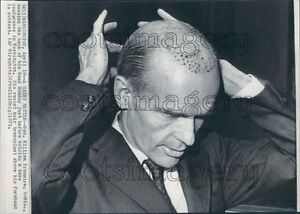 1972 US Senator William Proxmire of Wisconsin Gets Hair Transplant Press Photo
