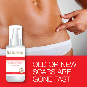 NEUTRA-FADE-SKIN-RECOVERY-OIL-SCAR-FADING-OIL-OLD-OR-NEW-SCARS-ARE-GONE