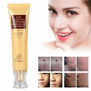 skin marks removal