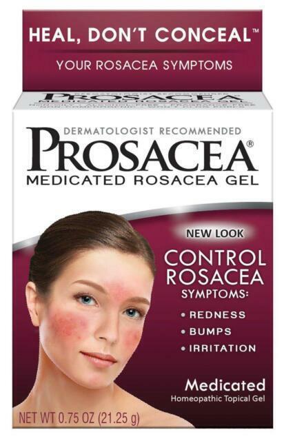 amelytől vörös foltok jelennek meg az arcon és viszketnek pikkelysömör fotó a testen és a kezelés