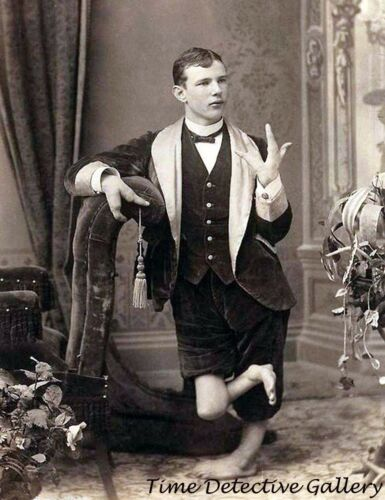 Historic Photo Print Circus Side Show Freak with Claw Hands