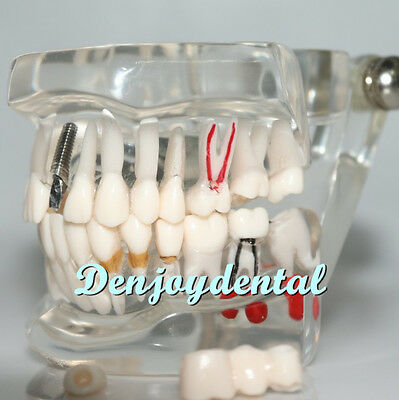 Dental Teach Study Adult Standard Typodont Demonstration Teeth Model #1401