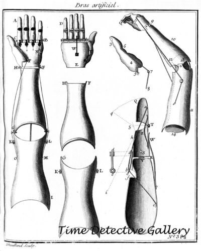 Mid-18th Century Illustration of Artificial Limbs Illustration Print