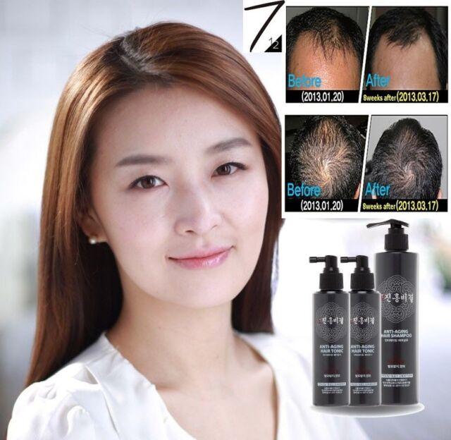 Hair Loss Prevention Tonic2+Shampoo1 Baldness prevention/Strengthen fragile Hair
