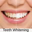 miniature 3 - Activated Charcoal Teeth Whitening Toothpaste 100% Natural Best Black Powder Set