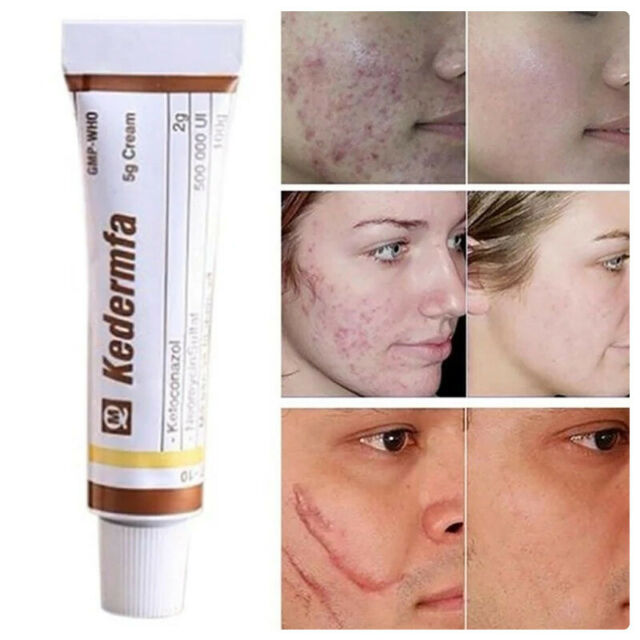 Face Care Essential Oil Acne Scar Spots Removal Skin Care
