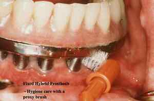 Details about Dental Teeth TOOTH IMPLANT MAINTENANCE And REPAIR PowerPoint  Presentation on CD