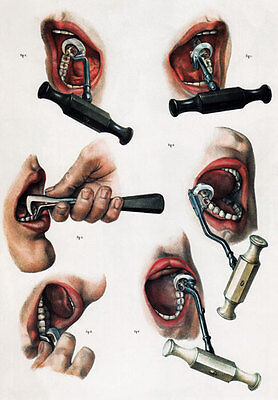 Verzamelingen ML21 Vintage 1800's Medical Dentist Tools & Equipment Poster RePrint A2/A3 Kaartjes, overig