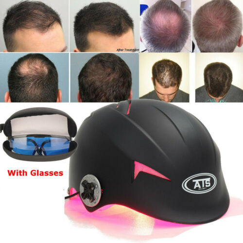 64-128-Diodes-Laser-Hair-Loss-Treatment-Germinal-Cap-Hat-Regrowth-LLLT-Promoter