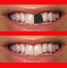 Temporary tooth repair diy kit missing teeth false cosmetic dental repair tooth temporary repair kit tooth replace missing make 13teeth 13gr solutioingenieria Images