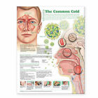 Understanding the Common Cold Anatomical Chart by Lippincott Williams and Wilkins (Fold-out book or chart, 2008)