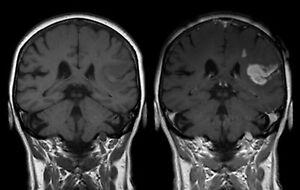 Framed print mri scan of the human brainhead medical picture image is loading framed print mri scan of the human brain ccuart Image collections