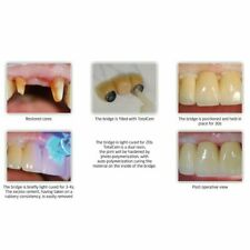 Dengen Rmgi Self Etch Self Adhesive Resin Cement Dental Free Shipping