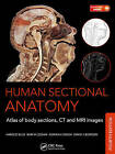 Human Sectional Anatomy: Atlas of Body Sections,CT and MRI Images by David J. Bowden, Bari M. Logan, Harold Ellis, Adrian K. Dixon (Mixed media product, 2015)