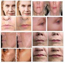 Matrixyl 3000 Peptide Cream Hyaluronic Acid Wrinkle Collagen Advanced Vitamin C